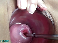 Extreme Cervix Electrosex with sound latitude into Womb